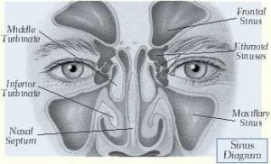 Sinuses Diagram | Nasal And Sinus Surgery Minor James Surgical Specialists
