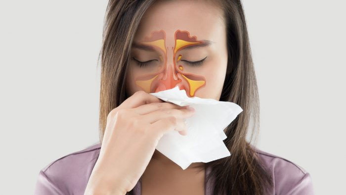 What are sinuses and what are they for exactly?